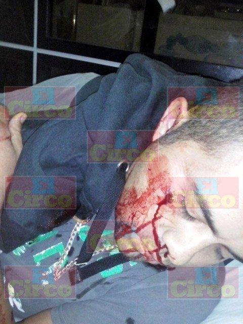 ¡A balazos intentaron ejecutar a un joven en Fresnillo!