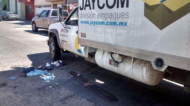¡Camión le amputó una pierna a un niño con síndrome de down en Aguascalientes!
