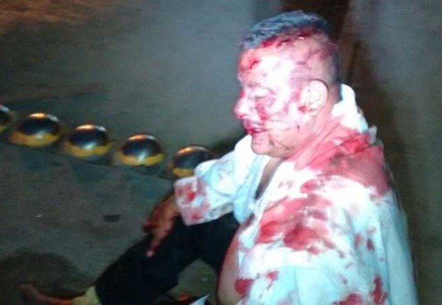 Intentaron asesinar a golpes a un sujeto en plena vía pública en Fresnillo
