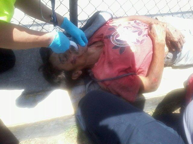 Agoniza desconocido atropellado por veloz auto en Aguascalientes