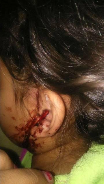 ¡FOTGALERIA/ 2 niños y su mamá fueron atacados por un feroz perro en Aguascalientes!