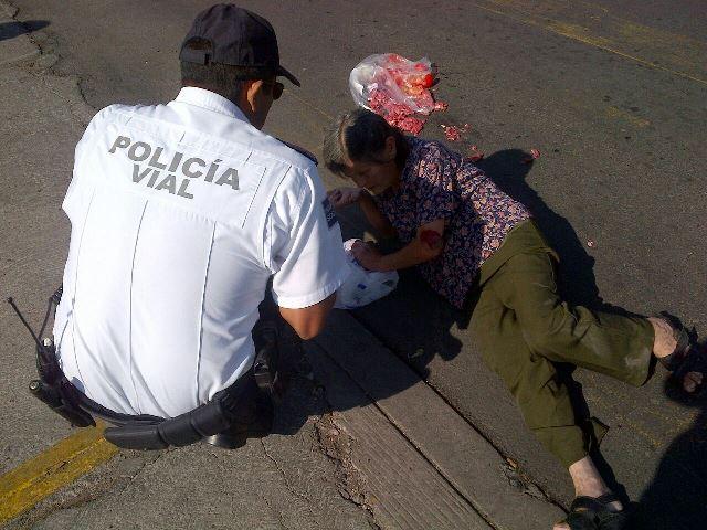 Veloz automovilista arrolló y lesionó de gravedad a una ancianita en Aguascalientes