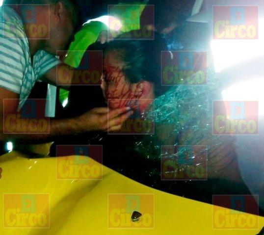 ¡FOTOGALERIA/ Joven terminó con la cabeza incrustada en un parabrisas tras chocar un taxi y una camioneta en Lagos de Moreno!