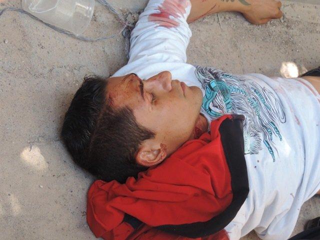 ¡Joven intentó suicidarse provocándose varias heridas con arma blanca en Aguascalientes!