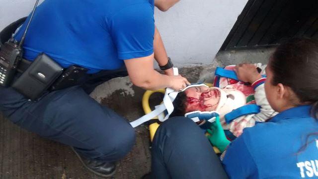 ¡FOTOGALERIA/ Grave motociclista embestido por un adolescente en Aguascalientes!