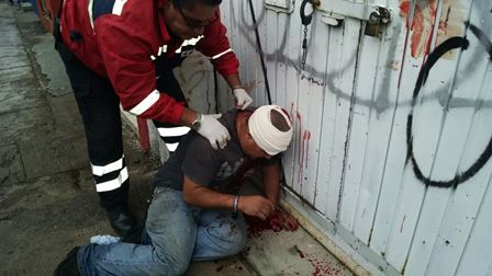 "¡Intentaron ""levantar"" a un sujeto en Aguascalientes y a batazos lesionó a uno de sus captores!"