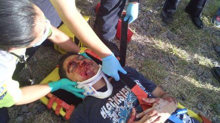¡Grave joven empleado arrollado por veloz auto!