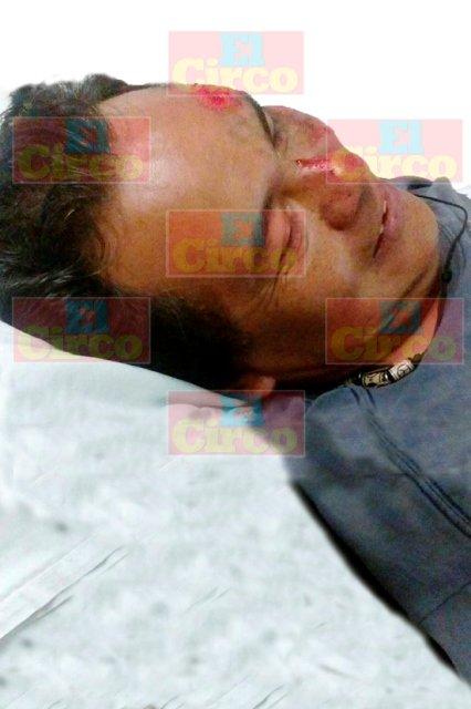 "¡Auto ""fantasma"" arrolló y lesionó a un hombre en Lagos de Moreno!"