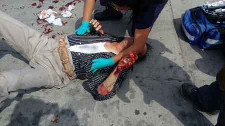 Muere octogenario tras ser arrollado por un camión