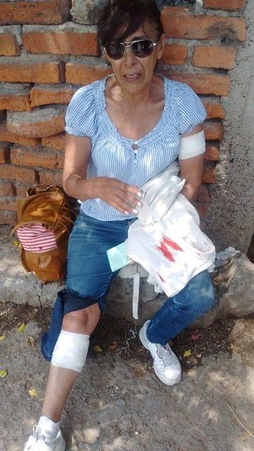 ¡Maestra resultó lesionada tras ser atacada por 5 perros en Aguascalientes!
