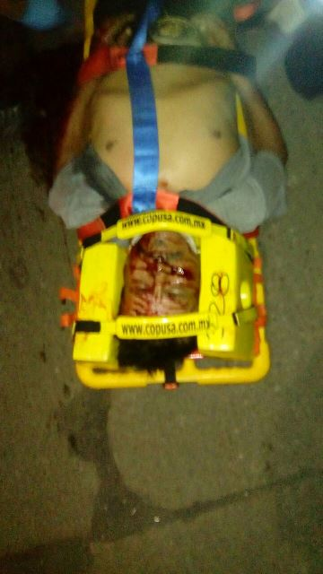¡Grave ebrio atropellado por un automóvil en Aguascalientes!