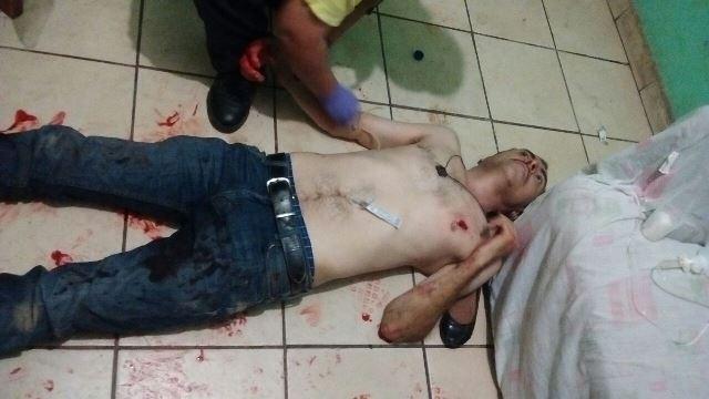 ¡Hombre fue apuñalado por una amiga en dos ocasiones en Aguascalientes y está grave!