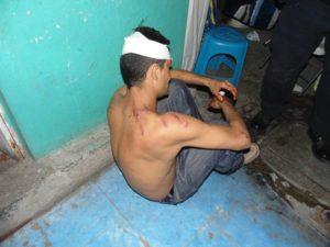 lesionado-picado-barrio-de-la-salud-3
