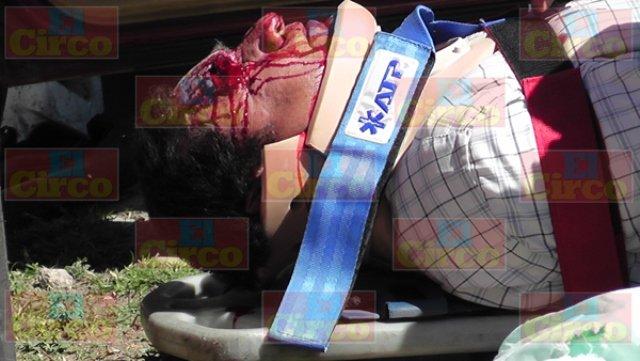 ¡2 hombres lesionados tras chocar su auto contra otro y un camión urbano en Zacatecas!