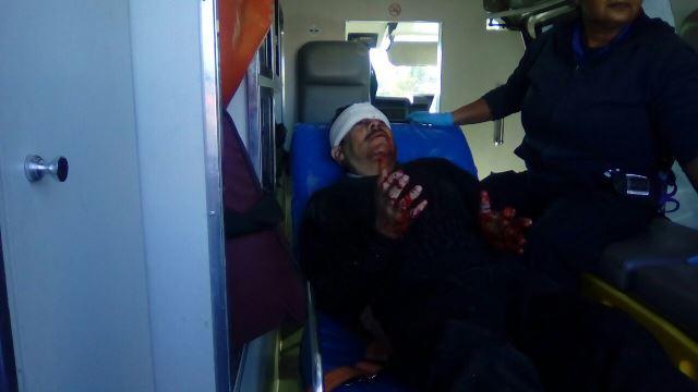 ¡Lesionado hombre atropellado por un automóvil en Aguascalientes!