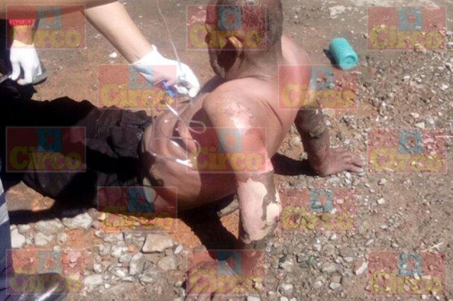 ¡Quincuagenario fue quemado por un sujeto en Lagos de Moreno!