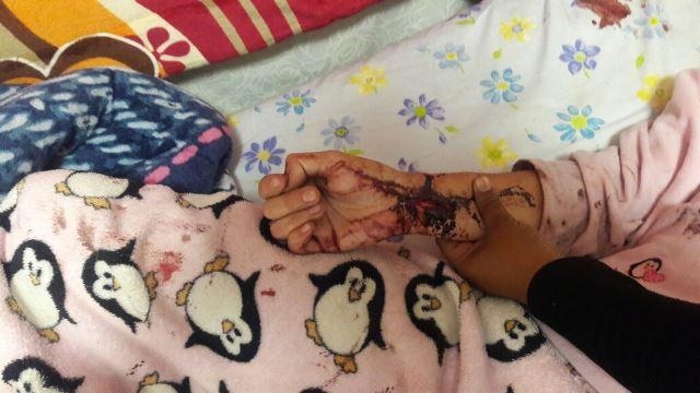 ¡Una paciente psiquiátrica intentó suicidarse cortándose las venas en Aguascalientes!