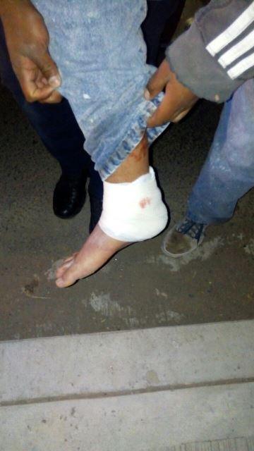 ¡Joven fue baleado y herido sin motivo en Aguascalientes!