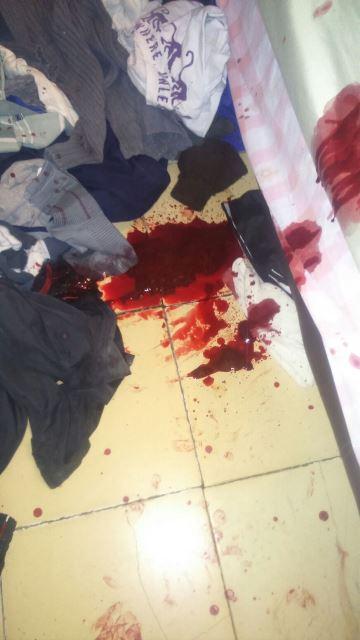 ¡Policías preventivos frustraron el suicidio de un joven en Aguascalientes!