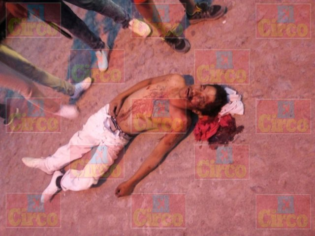 ¡Grave joven agredido por un chofer de un camión en Lagos de Moreno!