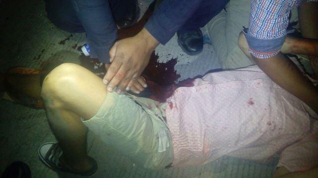 ¡Joven recibió un balazo por su compañero de parranda en Aguascalientes!