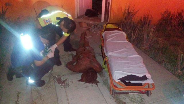 ¡Hombre sufre graves quemaduras al incendiarse su domicilio en Jesús María!