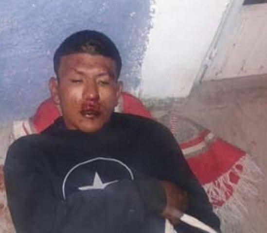 """¡Ladrón """"El Patas"""" recibió una golpiza por meterse a robar a una casa en Aguascalientes!"""
