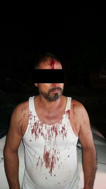 ¡Joven fue baleada durante una riña en Aguascalientes; su atacante fue detenido!