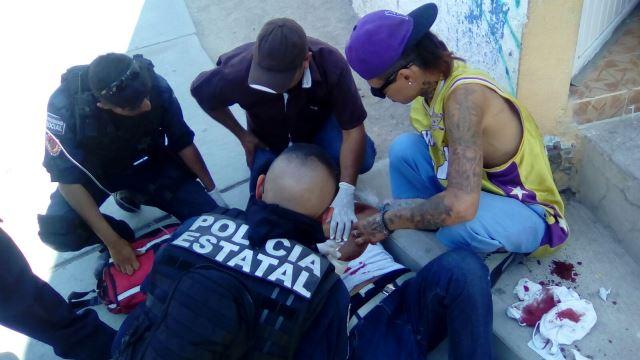 ¡Grave joven herido con un machete por un delincuente que además lo asaltó en Aguascalientes!