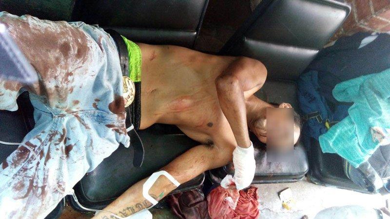 ¡Un herido a machetazos en riña entre bandas de la colonia Del Trabajo en Aguascalientes!