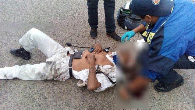 ¡Murió el yesero atropellado por un taxi la semana pasada en Aguascalientes!