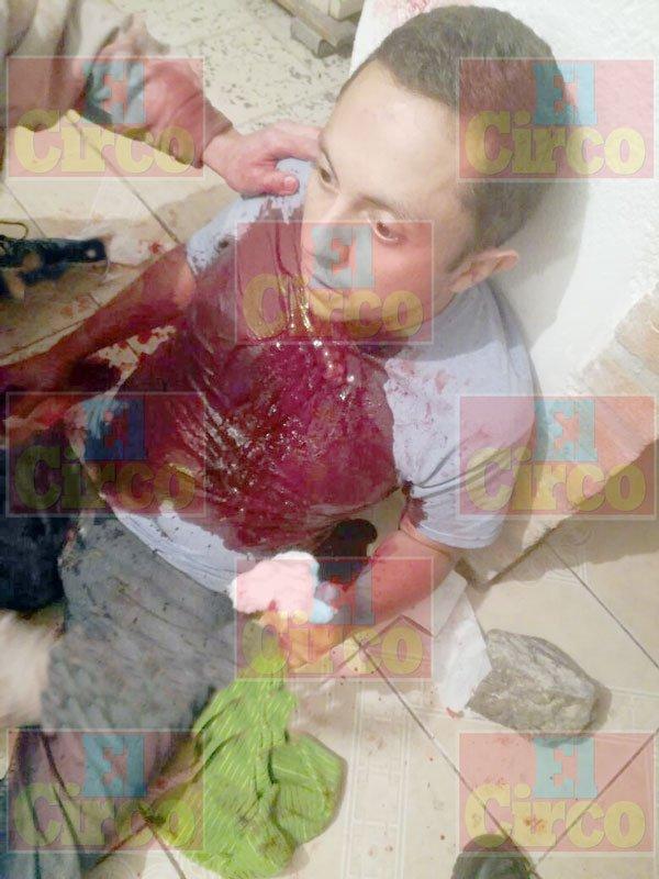 ¡Durante una borrachera con un amigo, un joven se cortó el cuello en Lagos de Moreno!