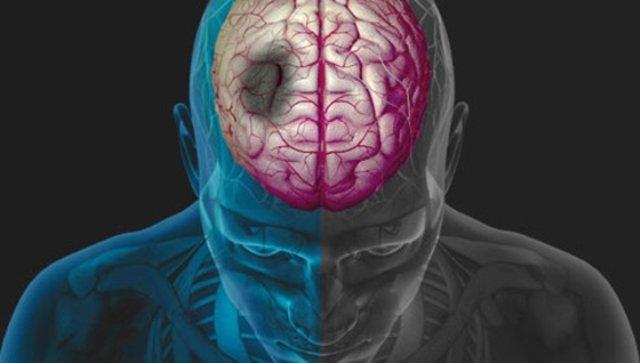 ¡Promueven inclusión del infarto cerebral al Seguro Popular!