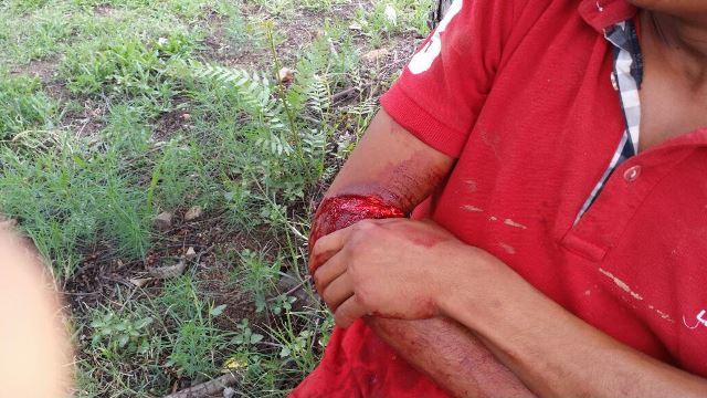 ¡Joven casi le cortó el brazo a su primo en Aguascalientes con un machete!
