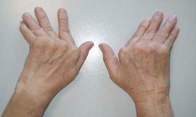 ¡Llevar una vida sana evita la artritis reumatoide!