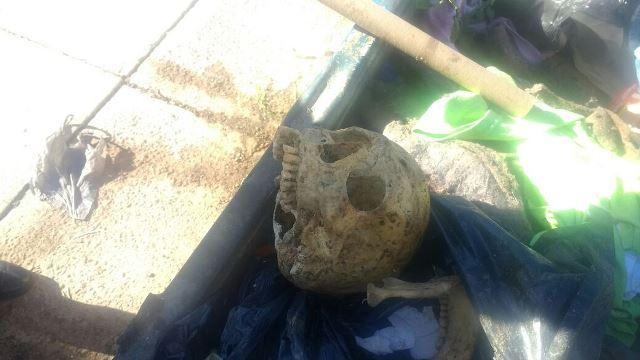 ¡Hallaron un cráneo humano en un contenedor de basura en Aguascalientes!