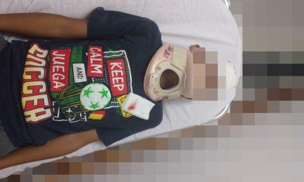 ¡Niño de 10 años de edad terminó gravemente lesionado tras caer de una bicicleta en Lagos de Moreno!
