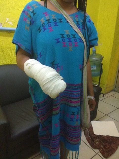 ¡Mujer hondureña denunció agresión de un inspector de Reglamentos y abuso de autoridad de una mujer policía en Lagos de Moreno!