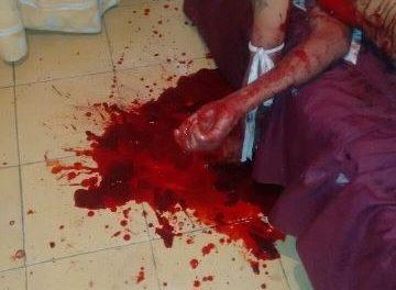 ¡Hombre se quitó la vida tras cortarse las venas con un vidrio en su casa en Aguascalientes!