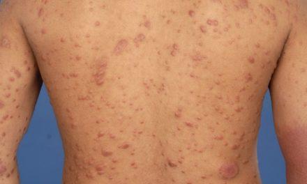 ¡28 de enero Día Mundial de la Lepra!