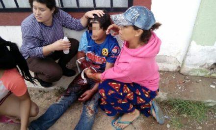 ¡Padre e hijo lesionados tras ser atacados por su perro bull terrier en Aguascalientes!