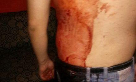 """¡Hombre fue """"picado"""" con un desarmador por sus primos en Aguascalientes!"""