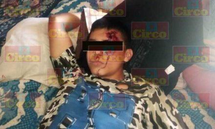 ¡Accidente de motocicleta dejó lesionado a un menor de edad en Lagos de Moreno!