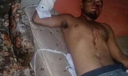 ¡Hondureño fue agredido en Aguascalientes y le amputaron un dedo de la mano derecha!