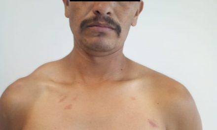 ¡Detuvieron a padre que golpeó y lesionó en el rostro a su hijo de 12 años de edad en Aguascalientes!