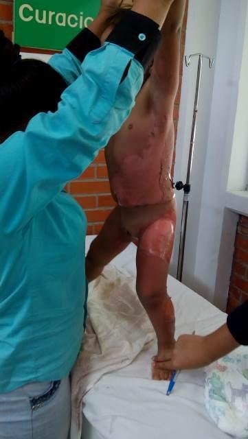 ¡Niño de 2 años de edad se echó encima agua hirviendo y sufrió quemaduras de gravedad en Aguascalientes!