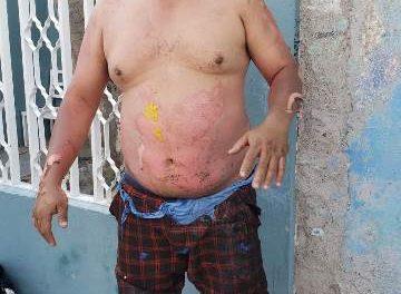 ¡Explosión en una casa en Aguascalientes dejó a un hombre con quemaduras de gravedad!