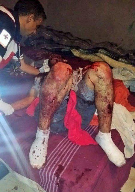 ¡Hombre se salvó de ser asesinado a machetazos por sus vecinos en Aguascalientes!