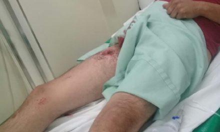 ¡Hombre se dio un balazo en una pierna de manera accidental mientras ordeñaba sus vacas en Aguascalientes!