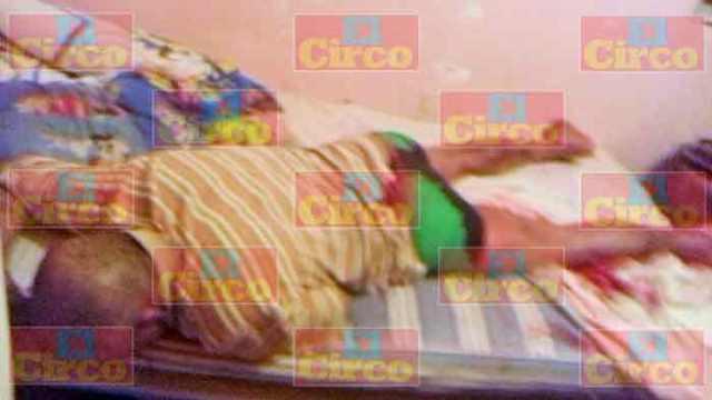 ¡Joven fue herido con arma blanca en un glúteo en Lagos de Moreno!